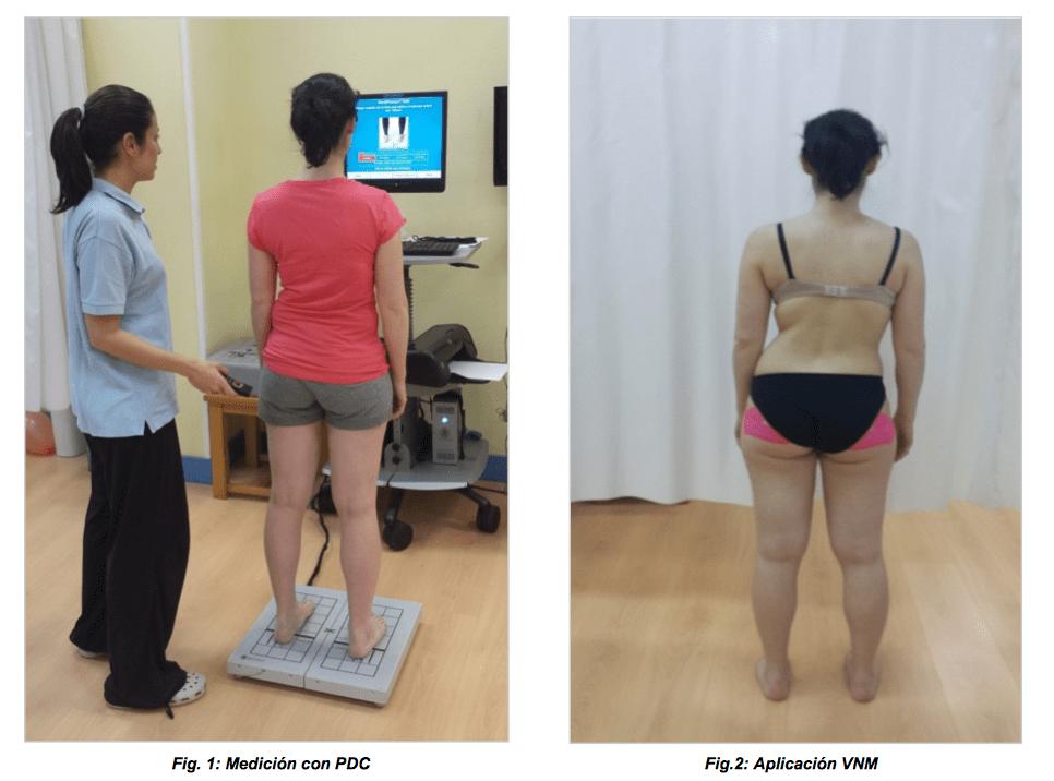 vendaje-neuromuscular-posturografia-fisioterapia-crene