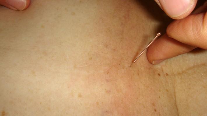 Punción Seca, una herramienta más del tratamiento fisioterapéutico a muchas patologías