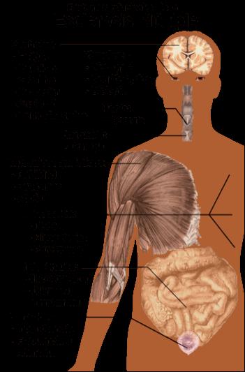 síntomas de la esclerosis múltiple