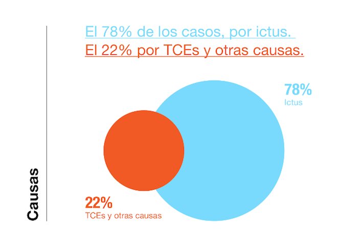 causas del ictus